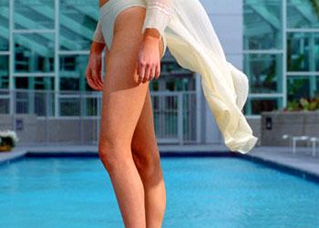 Варикозное расширение вен. Ноги